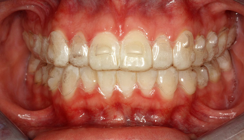 Image result for invisalign with buttons